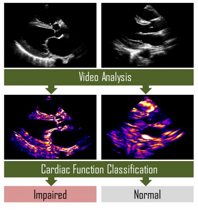 Cardiac Ultrasound Analysis