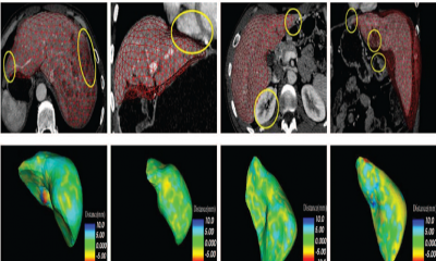 Robust Medical Image Segmentation