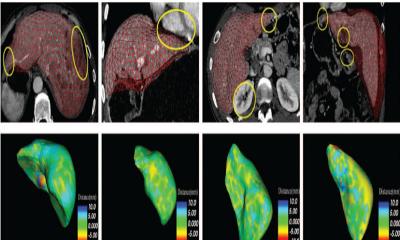 Robust Medical Image Segmentation